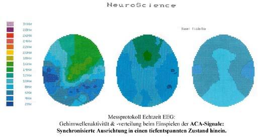 Wirkung ACA-Signale